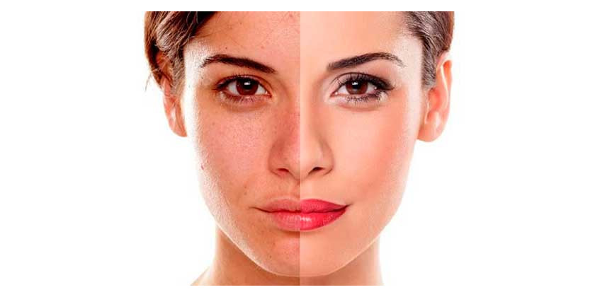 Remove dark spots from skin